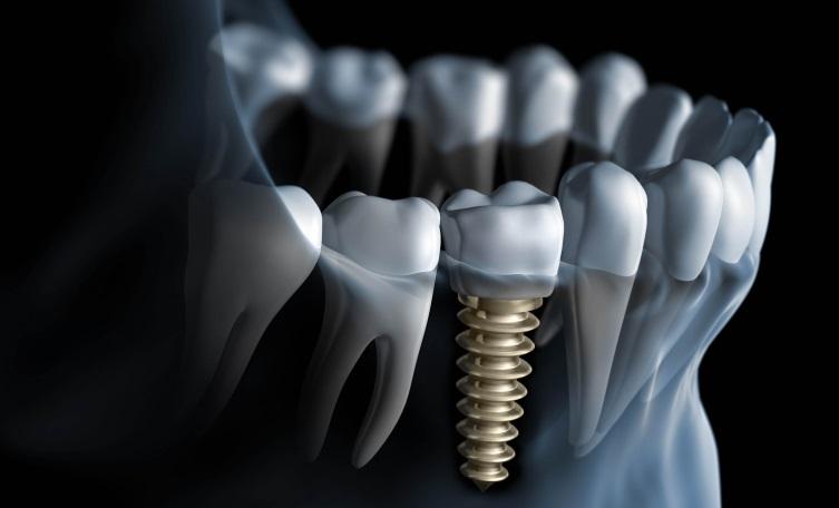 753456dental-implants